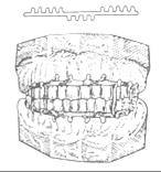 Хирургическо-ортопедические методы лечения переломов нижней челюсти