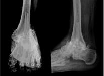 как лечить отложение солей в коленном суставе